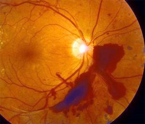 vl-retin